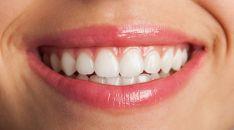 Imagen de la dentadura y los labios de una mujer.