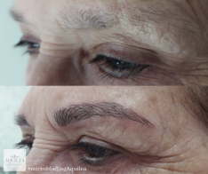 El centro de belleza Aquilea ofrece el microblading, un tratamiento de cejas.
