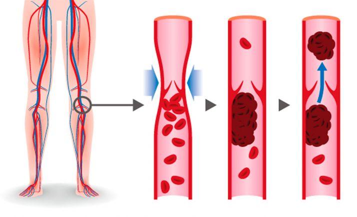 Desarrollo de trombosis en miembros inferiores.