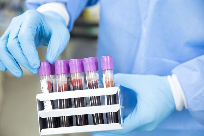 Foto 2 - Los pacientes con COVID-19 críticos presentan una diseminación del genoma vírico en su sangre