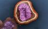 Virus de la gripe en microscopio electrónico. /Agencia Dicyt