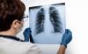 Foto 1 - Un estudio apunta los distintos patrones de daño pulmonar en las víctimas del coronavirus